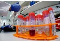 Virus corona - Covid-19: 42 người đang được theo dõi tại Nagaland vì Novel Coronavirus -